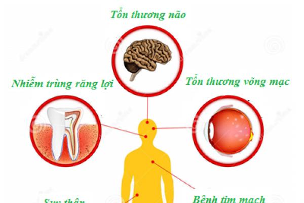 Biến chứng cấp tính của bệnh tiểu đường và cách xử lý