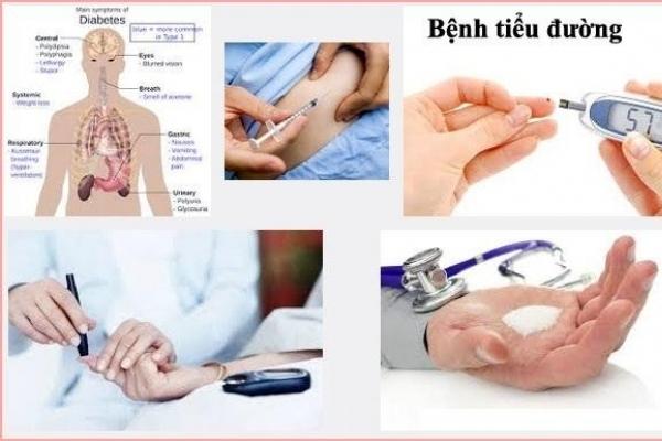 Khám phá tường tận về nguyên nhân của bệnh tiểu đường