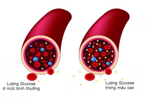 Lý do khiến đường huyết không ổn định