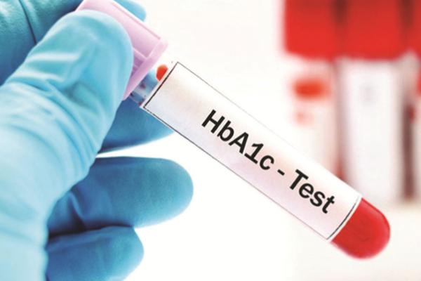 Những điều bệnh nhân tiểu đường cần biết về chỉ số HbA1c